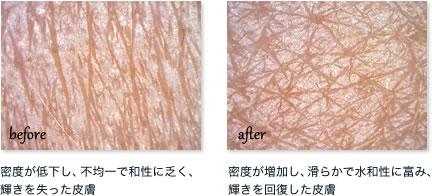 施術による肌の変化